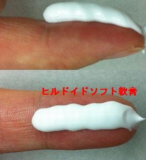 ヒルドイドソフト軟膏を第1関節から人差し指の先端までの量(1FTP)