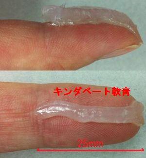 キンダベート軟膏の第1関節から人差し指の先端までの量(1FTP)