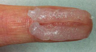 キンダベート軟膏の0.5g(第1関節から人差し指の先端まで2本分)