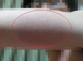 インフルエンザワクチン接種40時間後の腕の腫れ