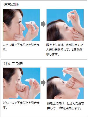目薬の点眼方法(通常法とげんこつ法)
