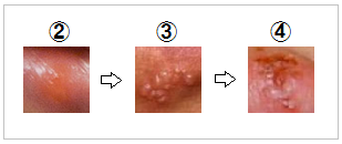 口唇ヘルペスの皮膚症状のパターン