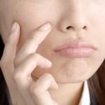 口唇ヘルペスがまたまた再発!? 感染原因と症状と潜伏期間は?