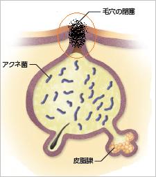 黒ニキビ(開放面皰)のイメージ写真