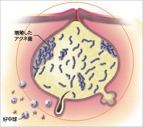 赤ニキビ(紅色丘疹)のイメージ写真
