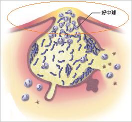 黄ニキビ(膿疱)のイメージ写真