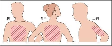ホクナリンテープの貼る位置(胸、腕、背中)