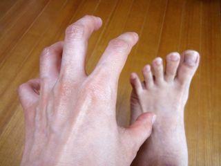 爪水虫の足をかこうとする手